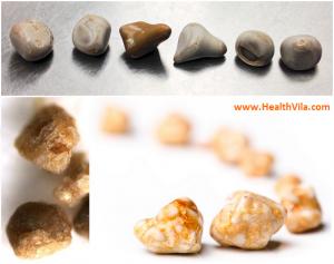 Kidney Stones Health Villa en