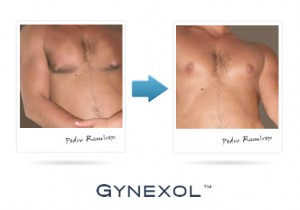 Gynexol Before After Pic 1