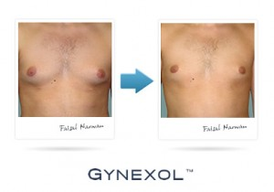 Gynexol Before After Pic 2