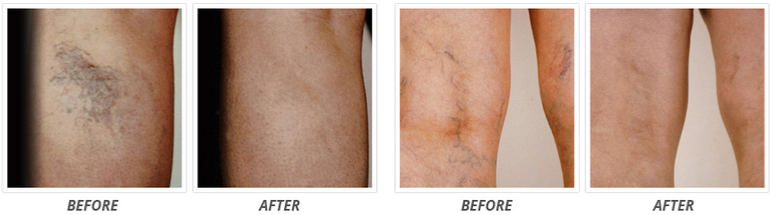 Venorex Before and After Results Comparison