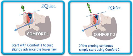 zQuiet Snoring Mouthpiece 1 vs 2
